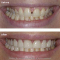 Smile Makeover: Crowns, Veneers, Gum Recontouring, Tooth Whitening,