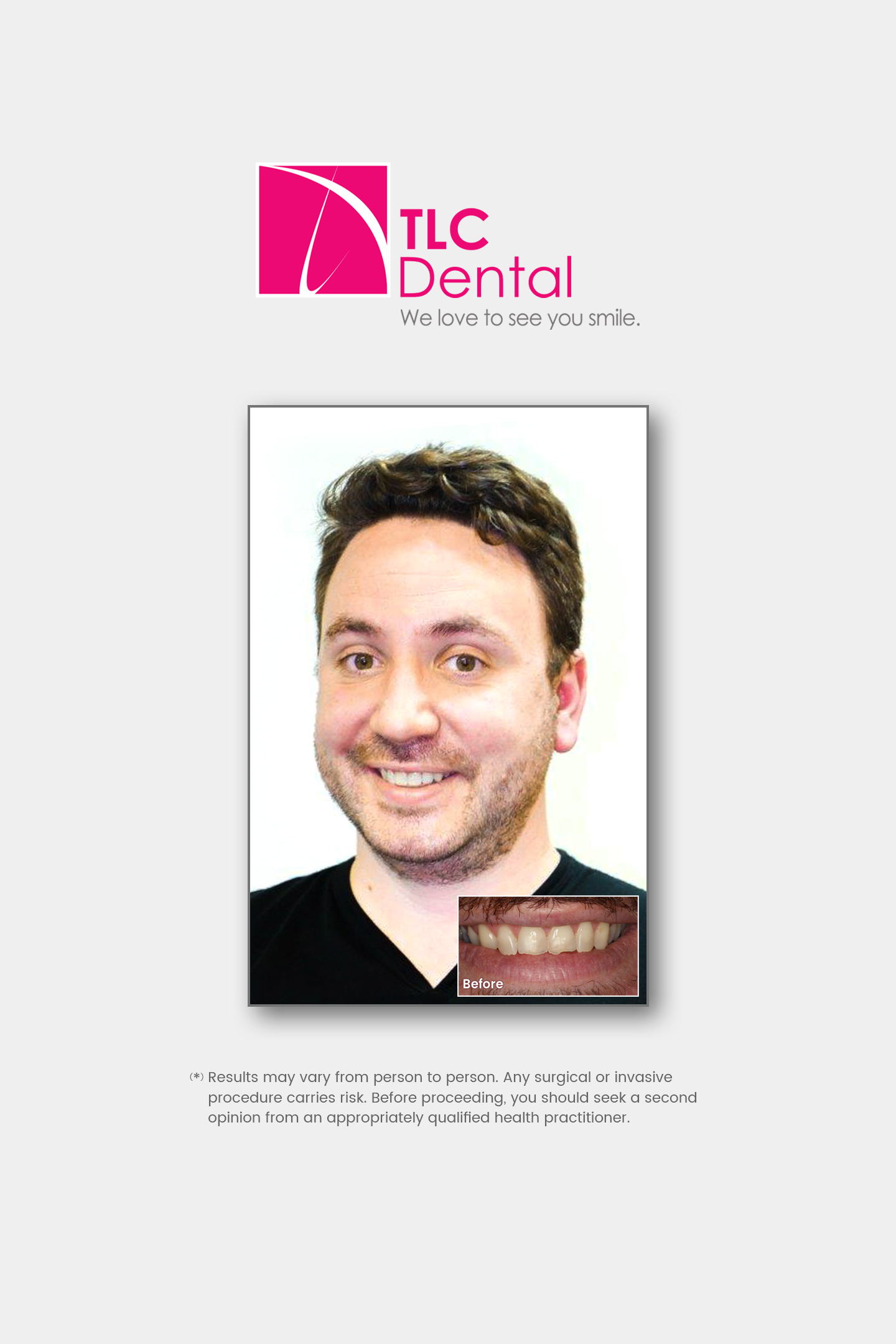 Natural+ In-Office Teeth Whitening & Ceramic Crowns
