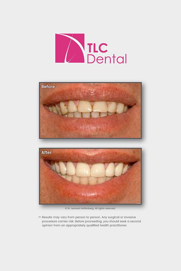 Smile Makeover: Crowns & Veneers Gum Treatment, Tooth Repair