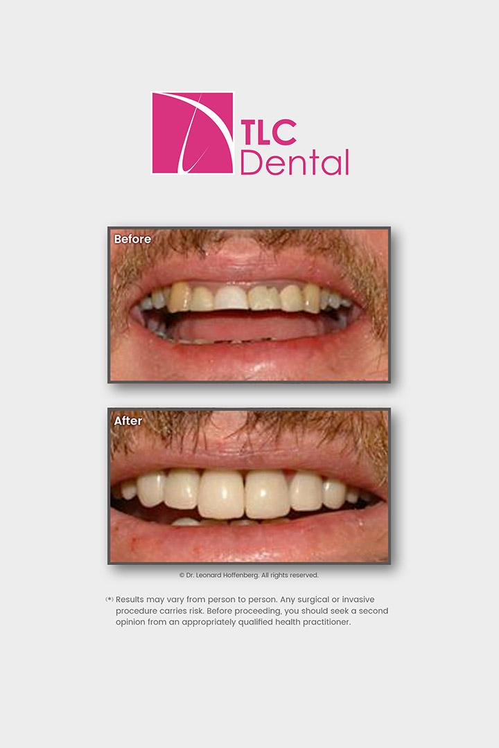Smile Makeover: Crowns/Veneers and Dental Implants