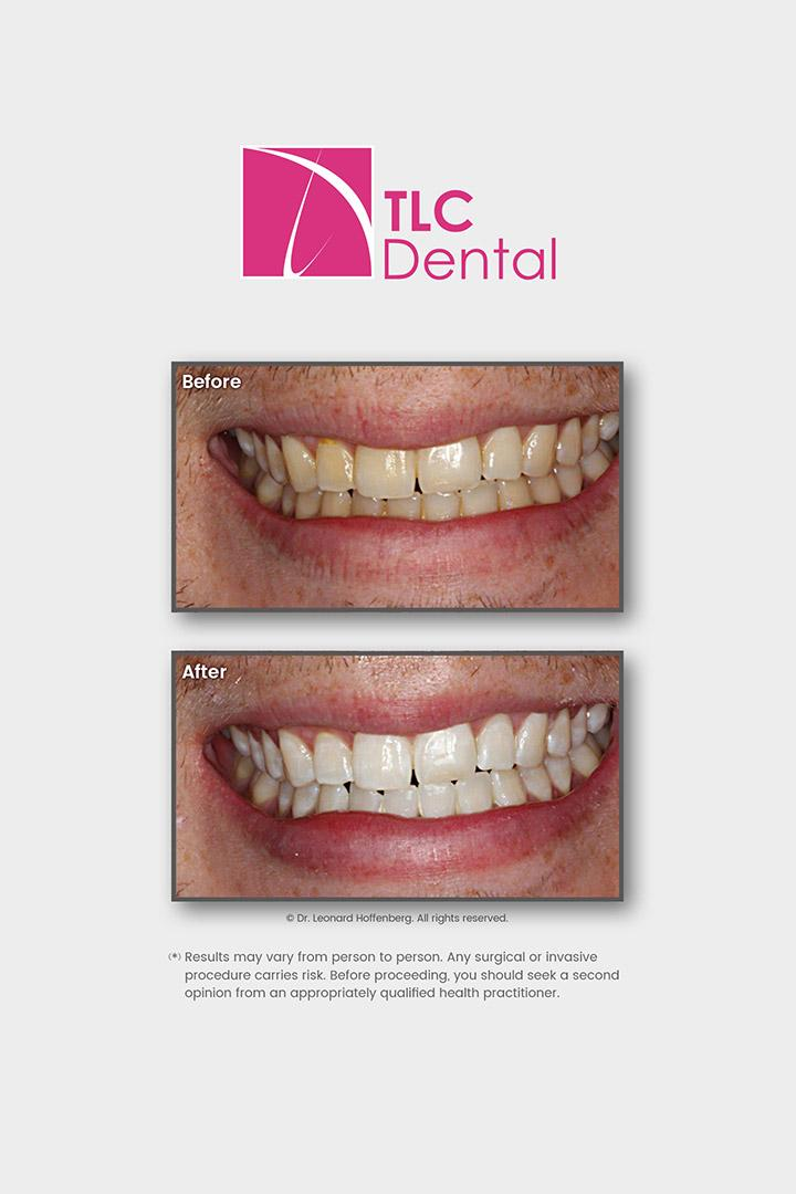 In-Office Tooth Whitening
