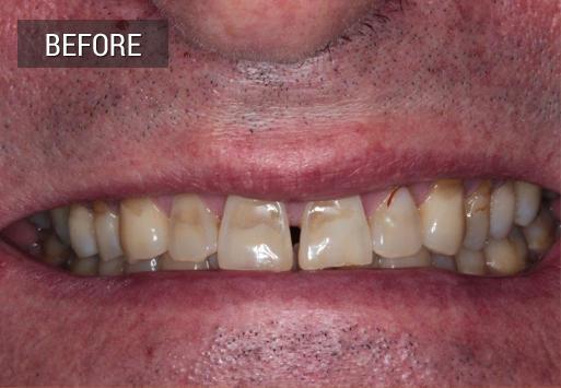 Before dental work