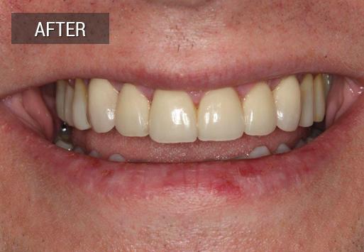 After dental work
