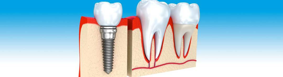 image showing how a dental implant looks