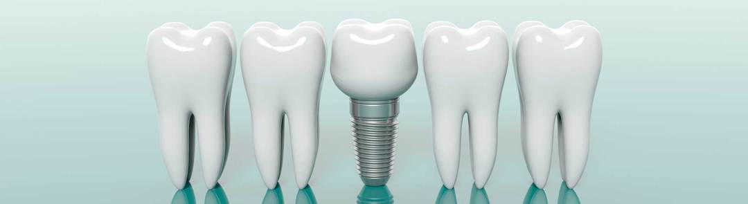 dental implants questions from patients