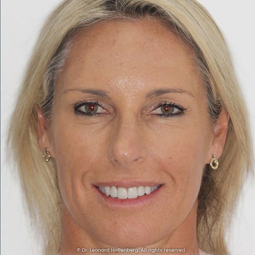 patient who had a smile makeover